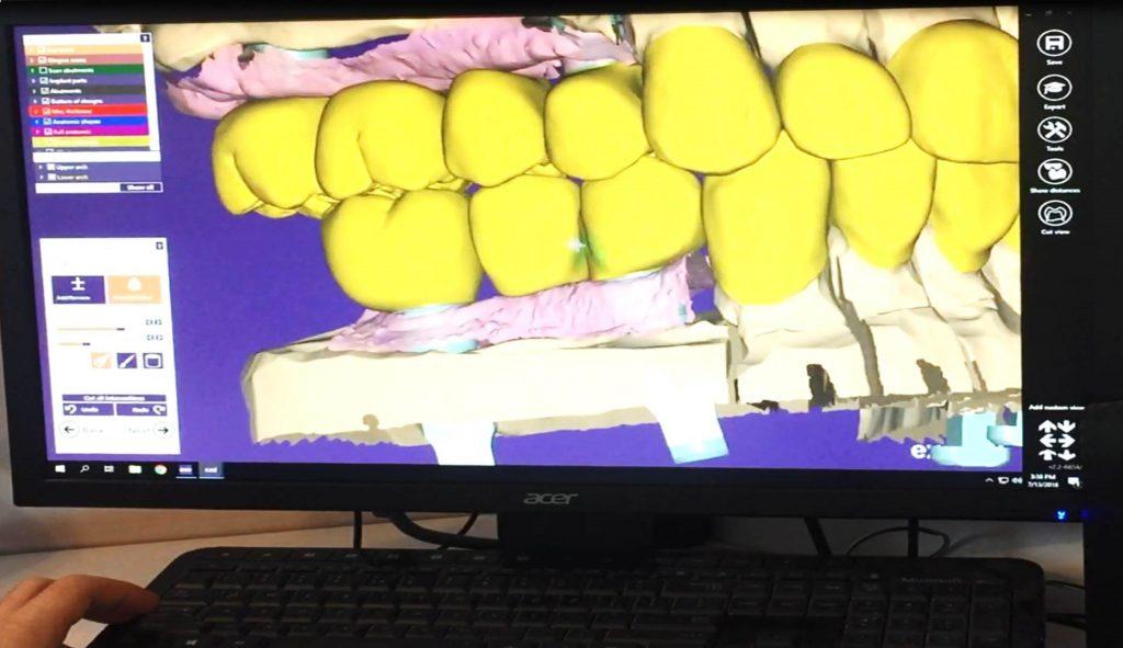dents en 3D